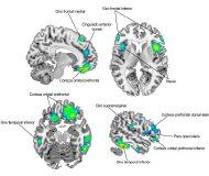 cervell biling web